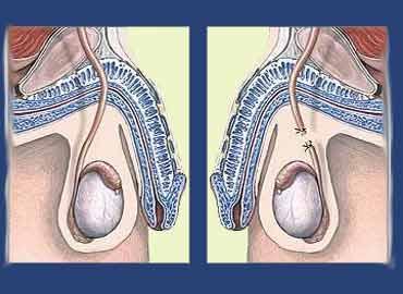 sterilisation mand pris